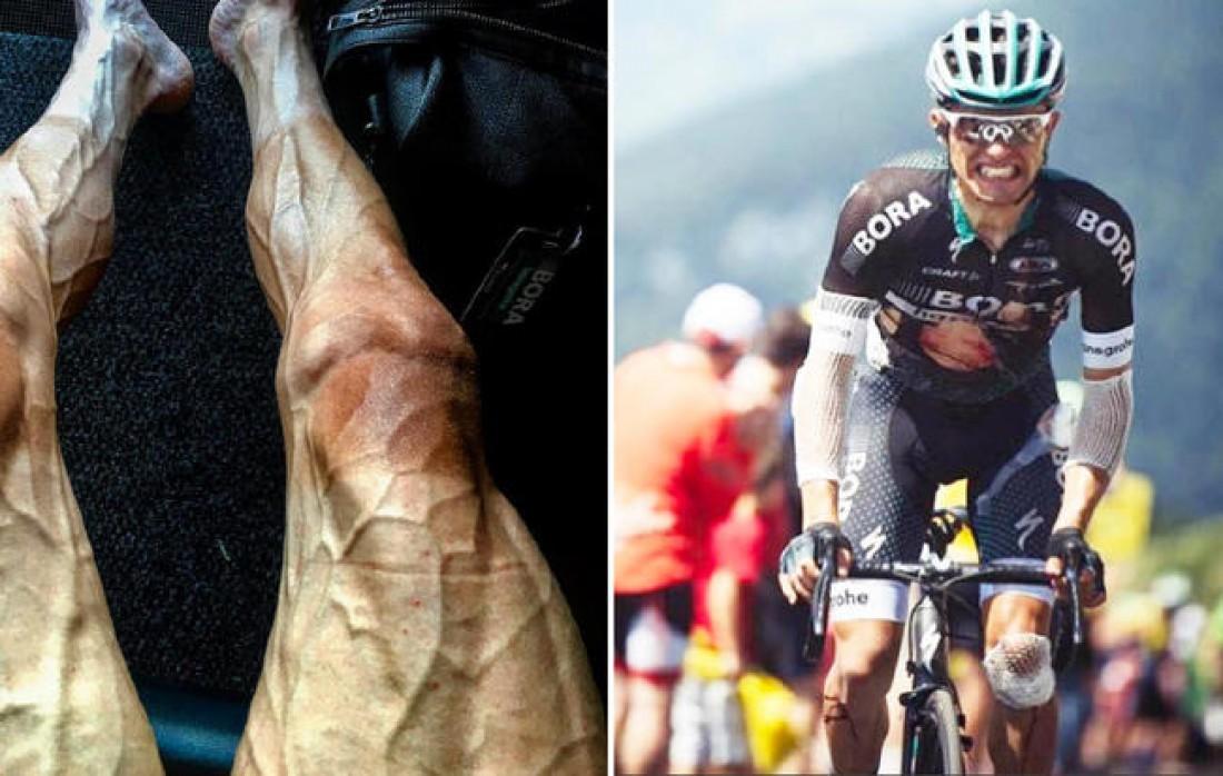 Павел Полянский и его ноги после прокатанных 3 000 км на Тур де Франс 2017