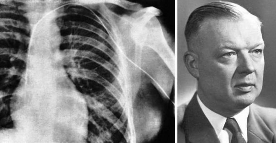 Немецкий хирург Вернер Форсман и снимок первого в истории
