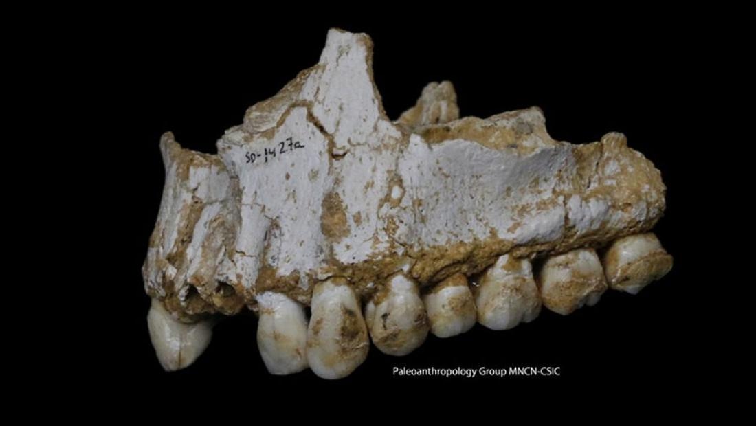 Гриб Enterocytozoon bieneusi поразил левую часть челюсти, неандерталец пытался уменьшить боль, принимая природный аспирин