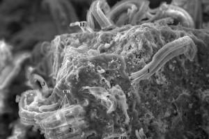 Так выглядят микроскопические структуры