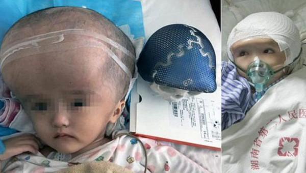 Ребенок до и после операции