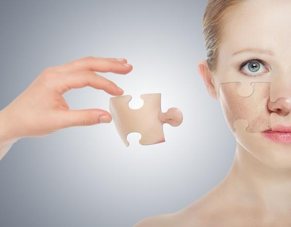 Как скрыть недостатки кожи: ТОП-6 советов