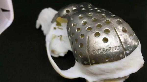 Протез черепа