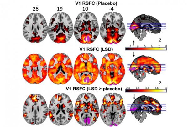 Карты функциональной связности нейронных сетей в зрительной коре в контроле и при приеме ЛСД