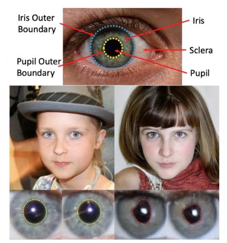 Вверху: анатомия глаза, включая правильную форму зрачка (вверху), а также сравнение реального лица и зрачков (слева) с искусственными (справа).
