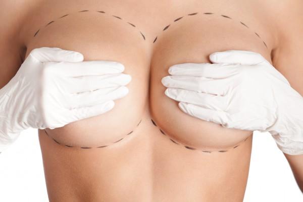 Когда нужна операция при мастопатии