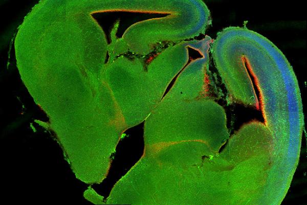 В мозге обнаружили лимфатическую систему