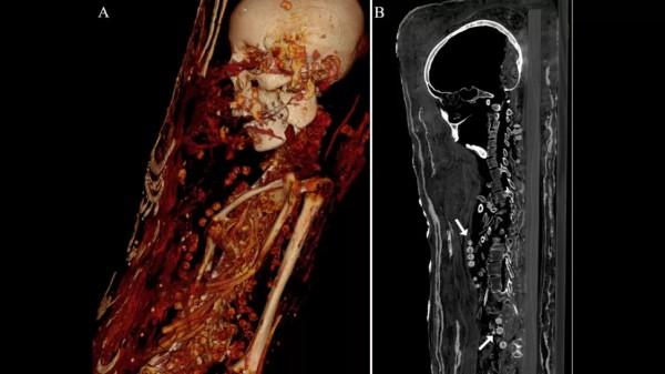 Компьютерная томография показала бусинки ожерелья на шее и теле женщины