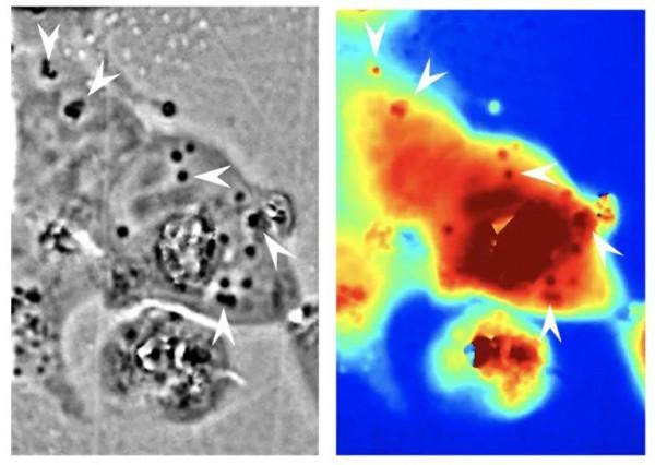 Слева: наноструктуры рефлектина можно увидеть внутри клеток человека как более темные области. Справа: различия в путях прохождения света через материал: красный - длиннее, а синий - короче.