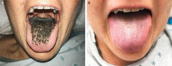 Язык до и после лечения