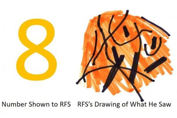 Глядя на любую цифру от 2 до 8, пациент RFS мог видеть только спагетти-каскад линий и цветов
