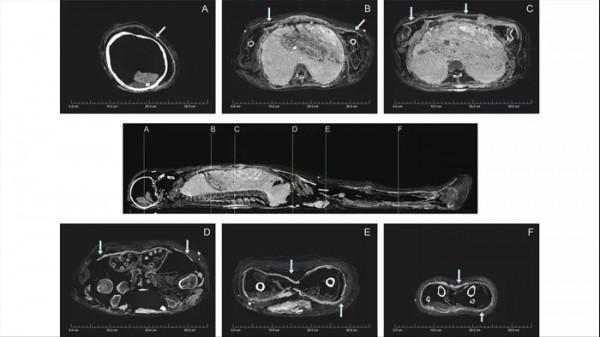 КТ-изображения внутренних черт мумифицированного человека. Панцирь можно увидеть как тонкую белую линию