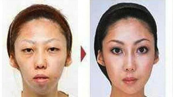 Китаянка потратила $100 тыс. на пластические операции до замужества
