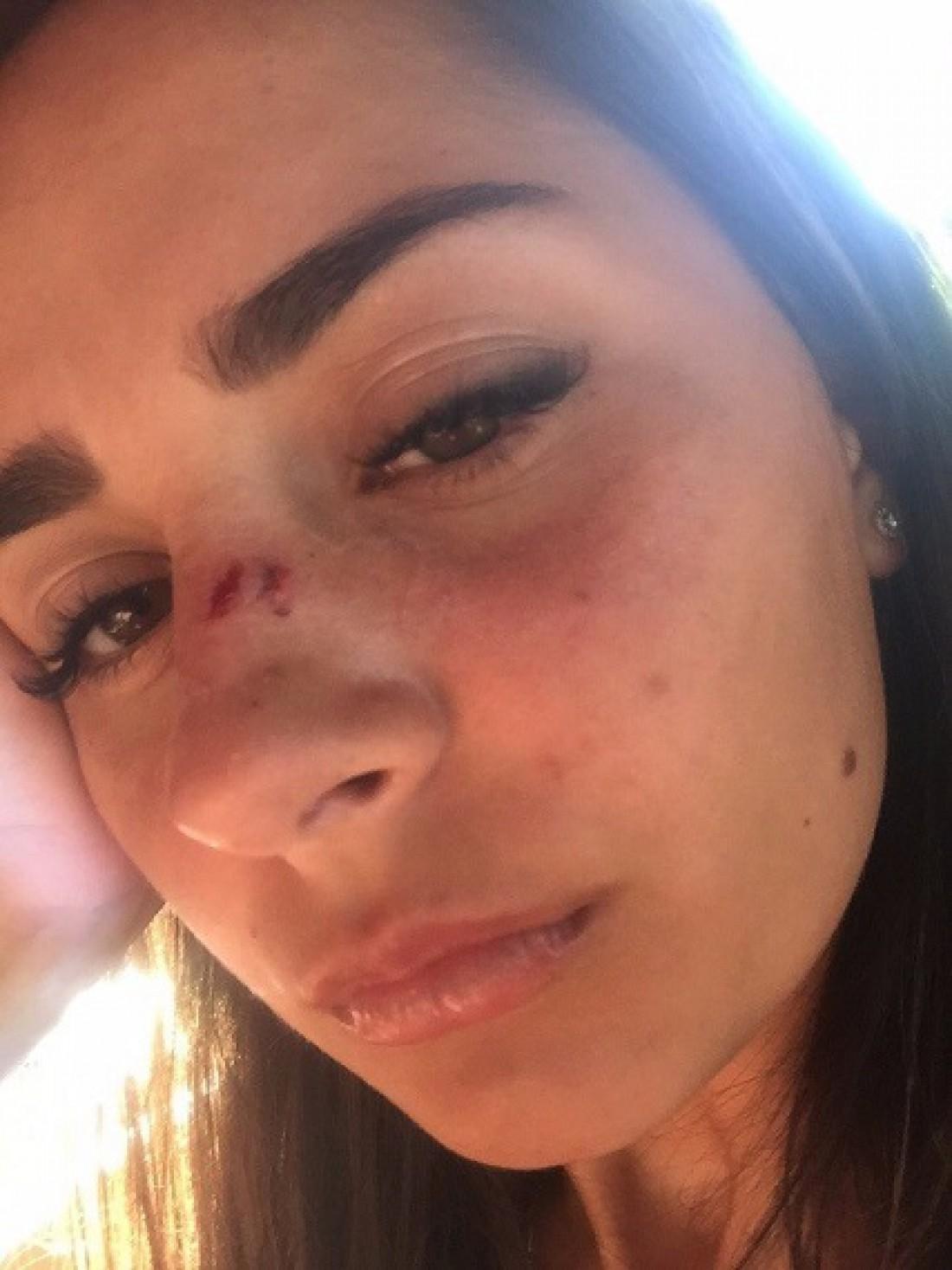 Одной из россиянок разбили нос