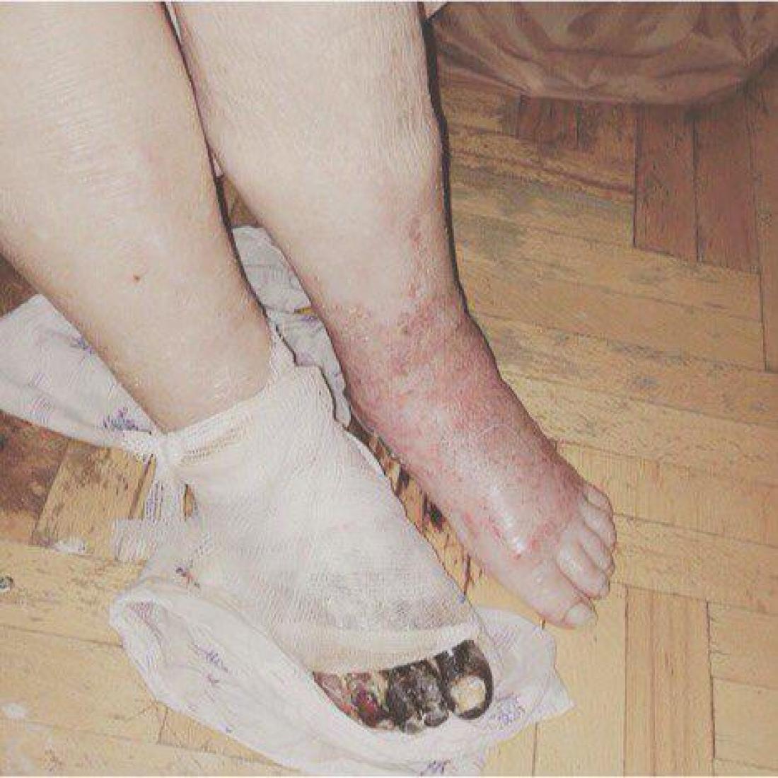Сначала медики отрезали здоровую ногу, а пораженную гангреной конечность оставили