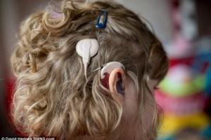 Улитковые имплантаты открыли Хлое мир звуков