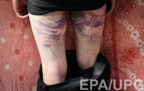 Травмы участников протестов в Беларуси