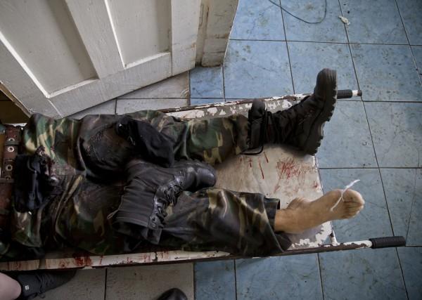 Российские СМИ сообщают, будто органы боевиков продают за границу