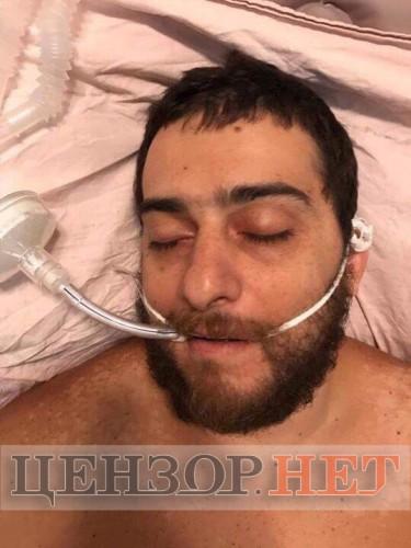 Еще один раненый из группы нападавших в больнице Мечникова