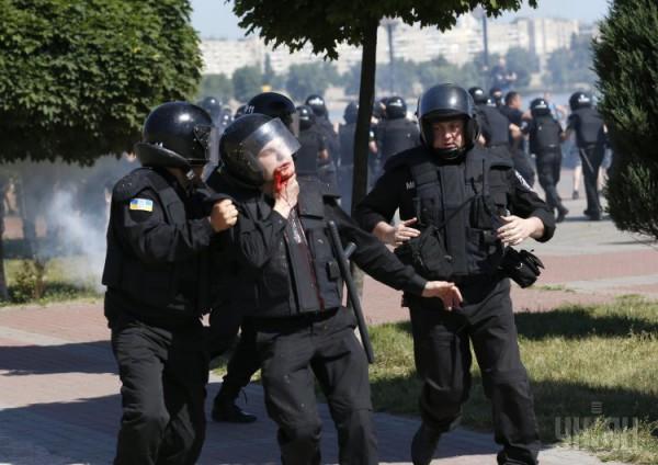 На Марше равенства милиционер получил тяжелое ранение в шею