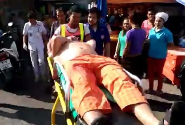 Российскому туристу отрезали ухо в Таиланде