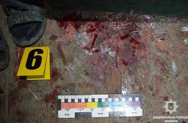 Убийца обратился в больницу из-за порезанной руки