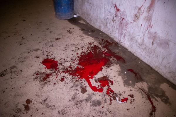 Мужчина истекал кровью