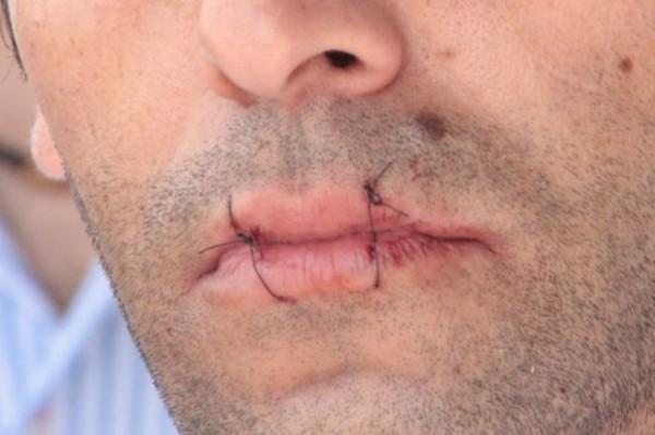 Протестующий зашил себе рот