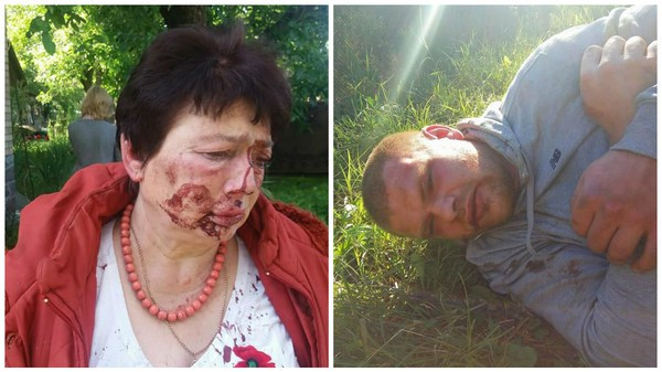 В поселке Коцюбинском избили председателя ТИК Людмилу Демченко