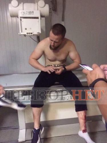 В больницу привезли четверых из группы нападавших, СМИ показали фото троих