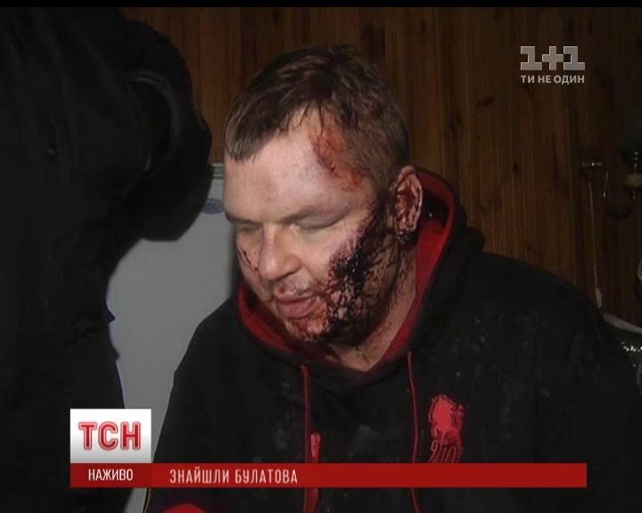 В таком состоянии нашли Дмитрия Булатова