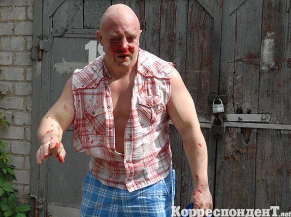 Лидер гей-движения Святослав Шеремет в кровоподтеках. Парад-2012 не удался
