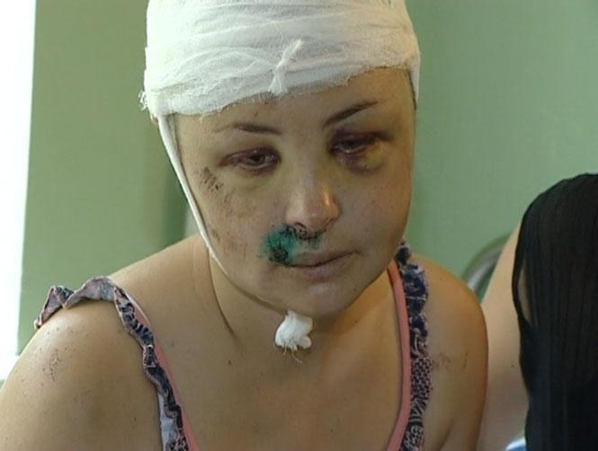 Ирина Крашкова в больнице после операции
