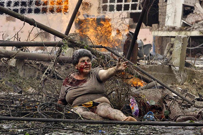 Раненая грузинская женщина на улице Гори после бомбардировки города российской авиацией
