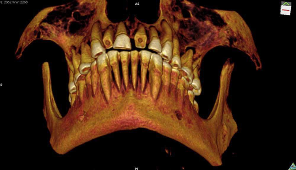 Даже современная стоматология не смогла бы ему помочь