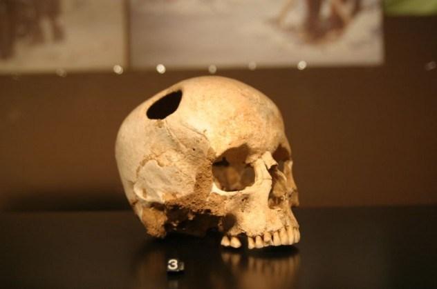 Трепанация черепа обычно заканчивалась смертью больного