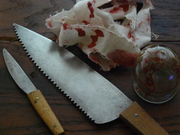 Хирурги Средневековья не беспокоились об анестезии и стерильности