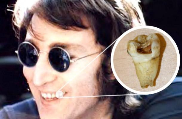 Зуб Леннона обследуют на возможность клонирования
