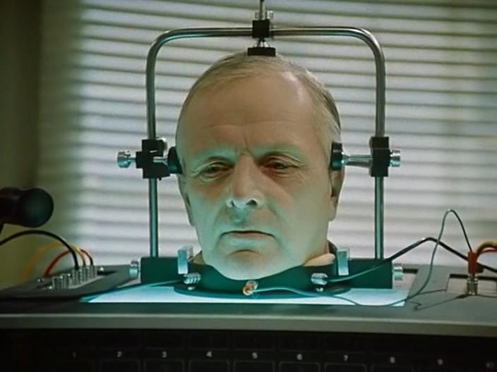 Пересадка головы станет обычной практикой
