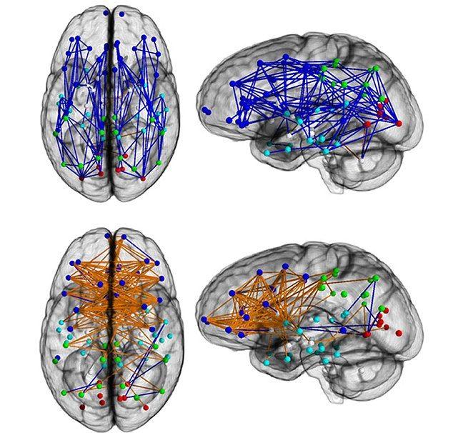 Вверху — мозг мужчины. Внизу — мозг женщины.