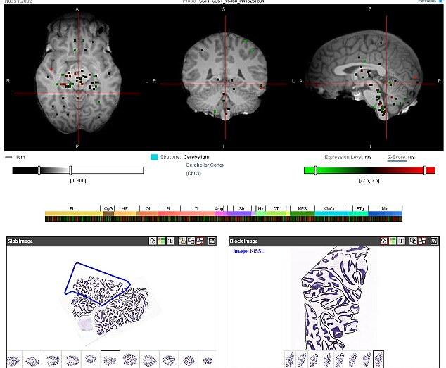 Карта мозга доступна всем желающим