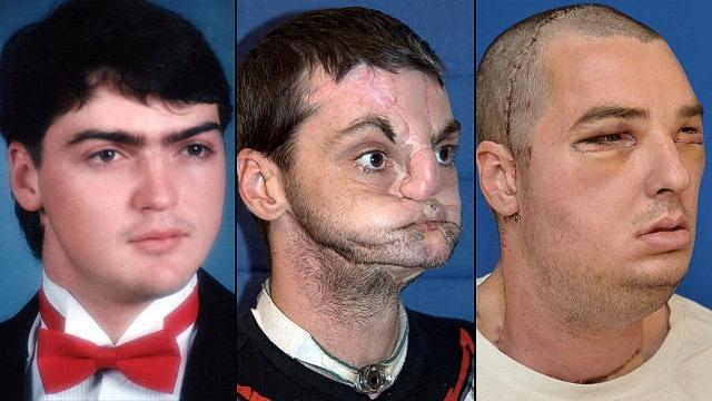Лицо до и после пересадки