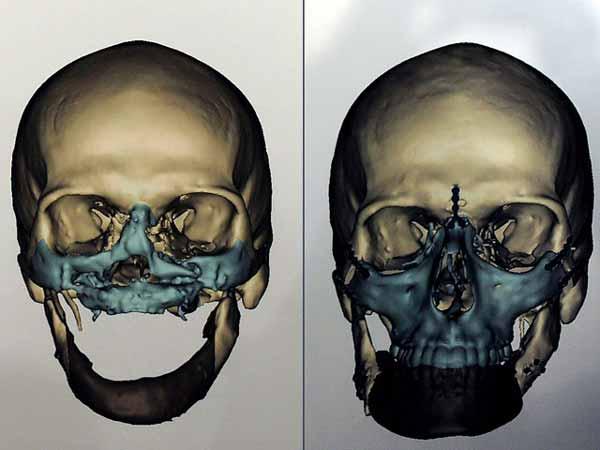 Пациенту восстановили кости