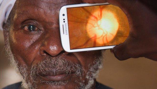 Galaxy S III используют для диагностики заболеваний глаз