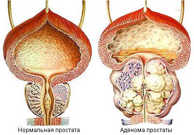 Симптомы аденомы предстательной железы лечение