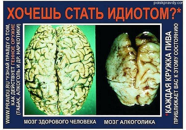 При вскрытии мозг алкоголика оказывается меньшего размера, сморщенным