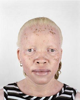 Альбинизм — врождённое отсутствие