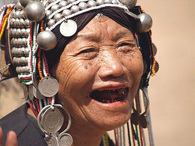 выбивали передние зубы проституткам
