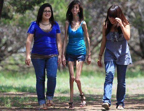 Самые худые женщины в россии