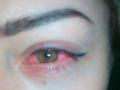 Украинка почти ослепла на один глаз после косметической процедуры